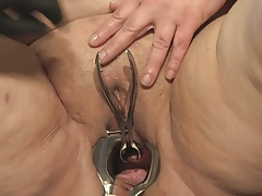 Speculum in Peehole of  B..